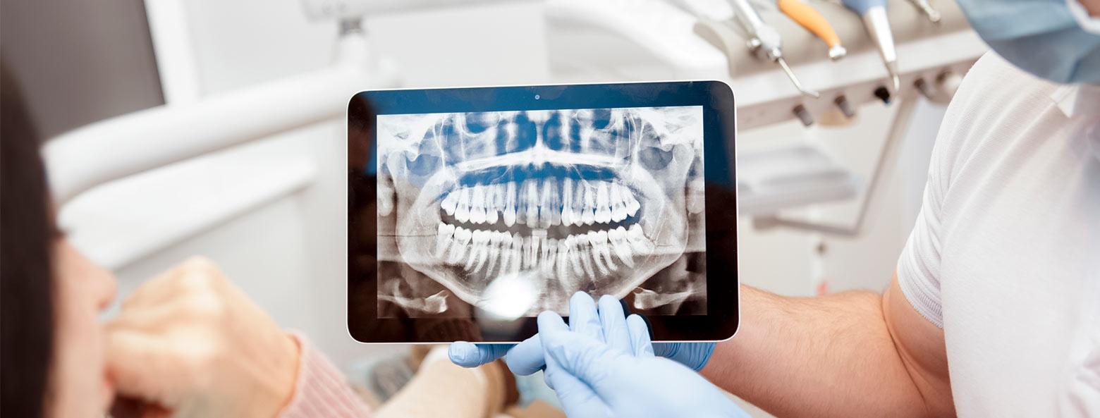 Zahnarzt digitales röntgen
